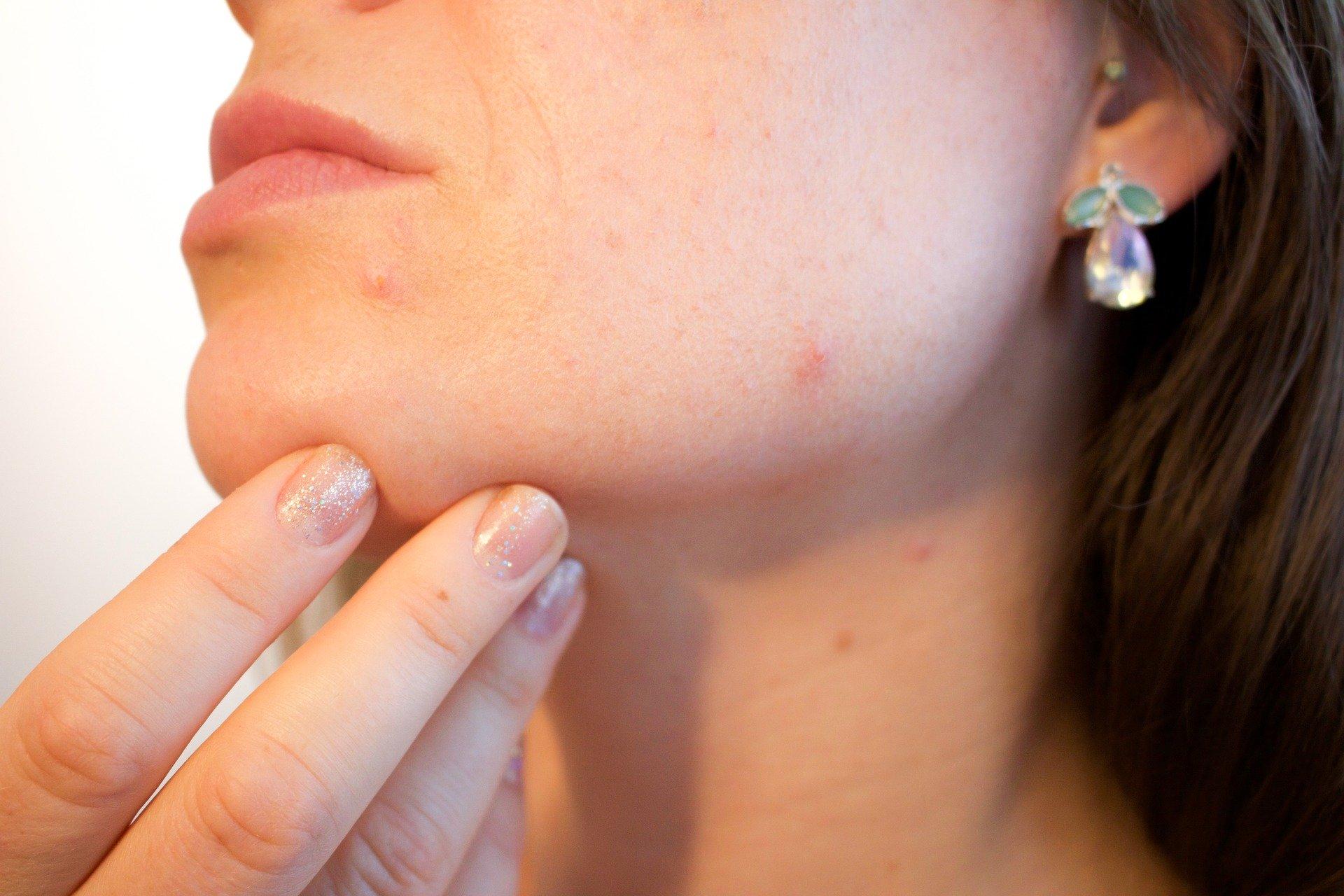Astuces beauté : comment prendre soin de sa peau grasse au quotidien ?