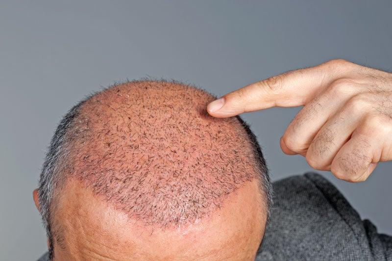 Alopécie : causes et préventions